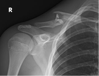 Figure 3a: 15 yo male injured in motor vehicle pedestrian accident.  Clavicle fracture with shortening and comminution.