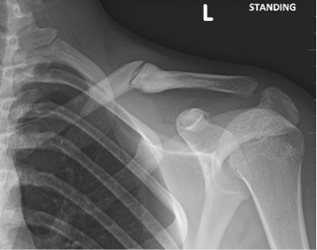 Figure 4b: Symptomatic malunion and subsequent refracture, 5 months from original injury.